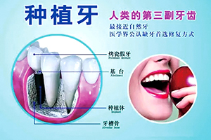 """种植牙寿命多久 健康牙齿""""种""""出来"""