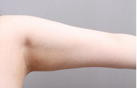 手臂激光脱毛多久脱一次 效果如何