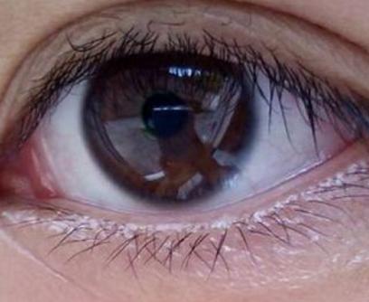 手术埋线双眼皮 埋线双眼皮多少钱 微创小 恢复快