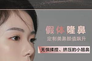 假体隆鼻价格是多少 垫高鼻梁 挺翘上镜