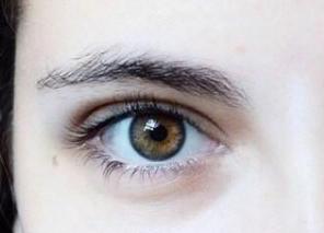 2021割双眼皮多少钱 切开双眼皮多久能好 打造妩媚大眼