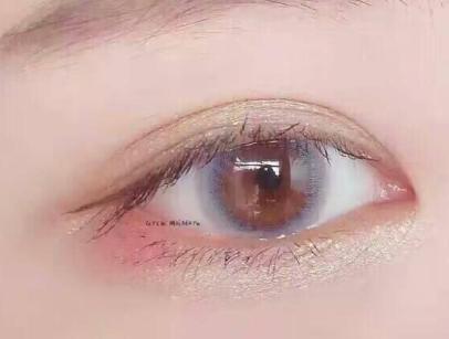 开内眼角整形 看看自己适不适合开内眼角