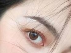 眼整形 开内眼角效果怎样 开内眼角恢复期多久