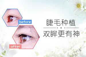 睫毛种植手术安全吗  拥有自然卷翘睫毛