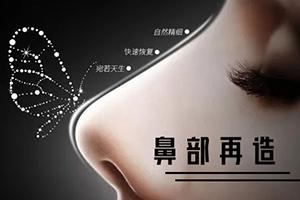 鼻部再造手术效果自然 重塑美鼻 重获自信
