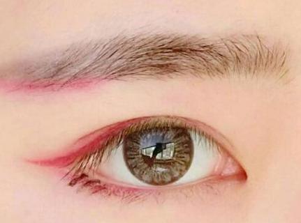 眼部整形 开外眼角痛吗 不回缩 隐藏痕迹