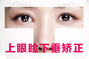眼睑下垂矫正手术多少钱  价格一览表