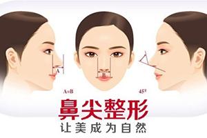 整形鼻尖术 鼻尖整形多少钱 让美更加自然