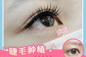 睫毛种植的原理是什么  打造自然卷翘睫毛