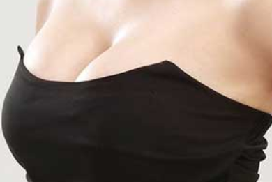 胸部缩小整形 巨乳缩小效果持久吗 构造协调双乳