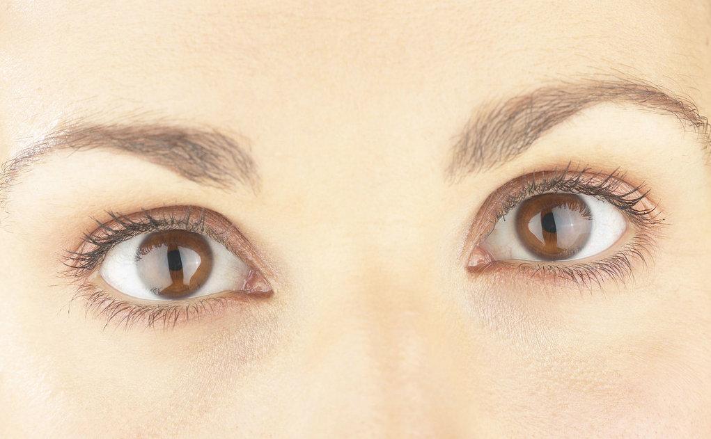 开内眼角多久恢复自然  拥有灵动迷人眼睛