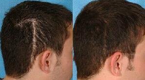 头部有疤痕适合植发吗 疤痕植发多久能长出头发